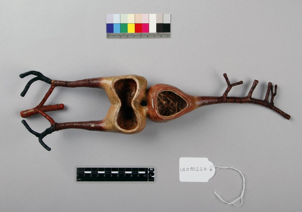 http://www.arca.museus.ul.pt/ArcaSite/obj/auzoux/MUHNAC-0001959-MB-IMG-web.JPG